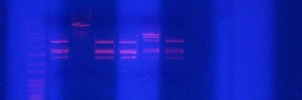 How Does Automated Electrophoresis Perform DNA Size Selection?